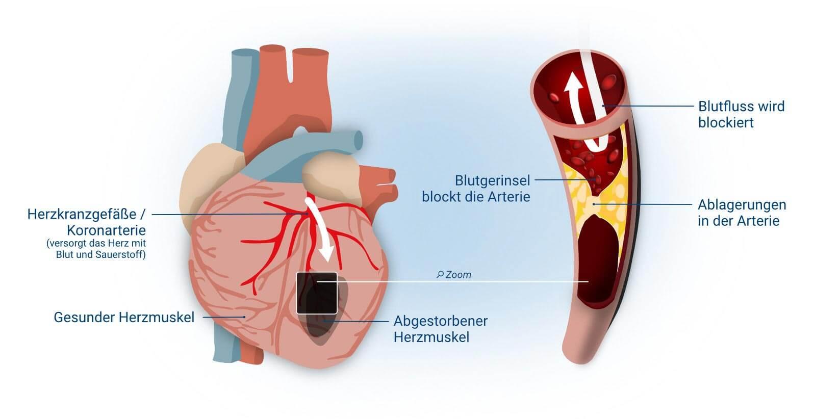 Herzinfarkt Myokardinfarkt Ursachen Symptome Und Therapie