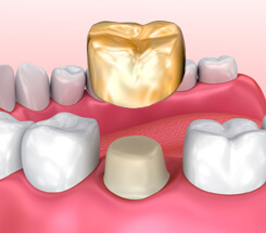 Zahnkrone einsetzen