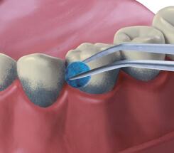 Zahnreinigung Einfärben der Beläge
