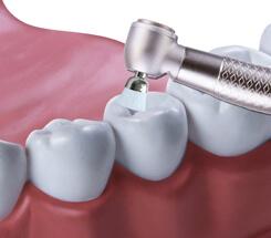 Politur der Zähne
