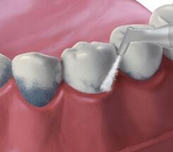 Zahnreinigung mit Airflow-Pulverstrahl