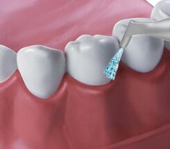 Reinigung der Zähne mit Wasser und Luft