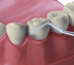 Zahnreinigung Entfernung von Zahnstein