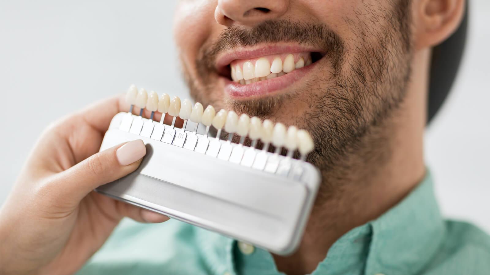 Zahnfarbe häufigste Leistungen