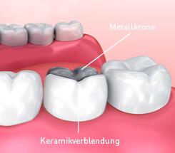 Zahnkrone Arten Behandlung Und Kosten