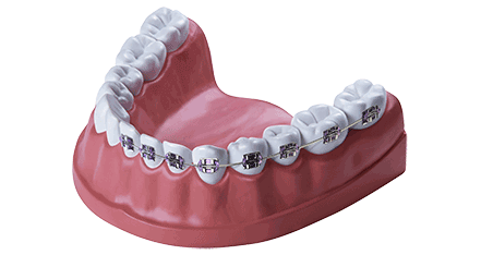 Zahnbehandlung Kieferorthopädie