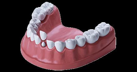 Zahnbehandlung Zahnersatz