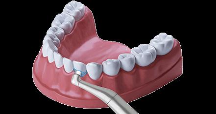 Zahnbehandlung professionelle Zahnreinigung